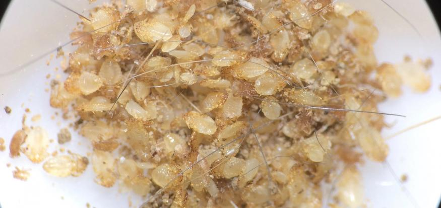 Sorting Lice